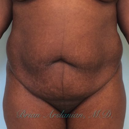 Liposuction Before & After Patient #290