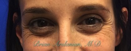 Botox Before & After Patient #194