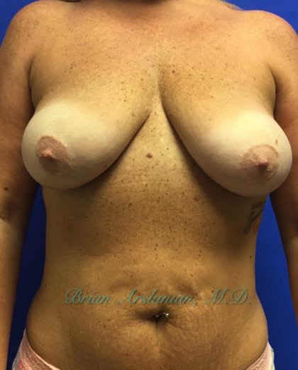 Breast Lift Before & After Patient #117