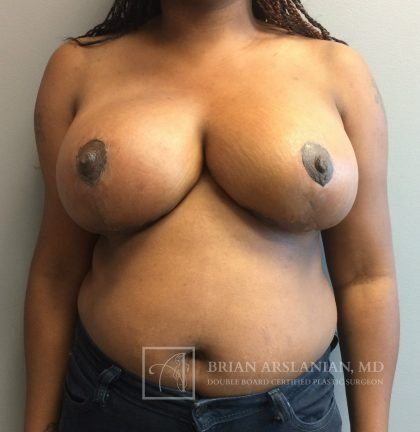 Breast Reduction Before & After Patient #128