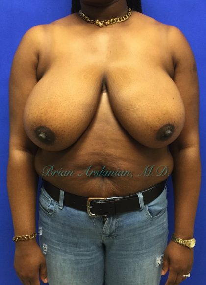 Breast Reduction Before & After Patient #139