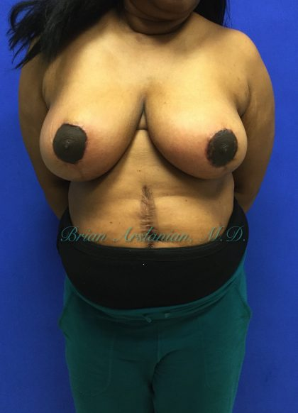Breast Reduction Before & After Patient #150