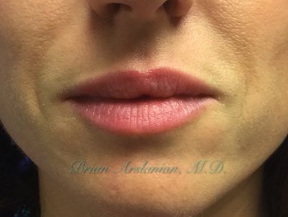 Fillers Before & After Patient #211