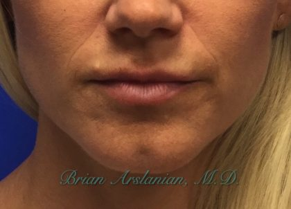 Fillers Before & After Patient #225