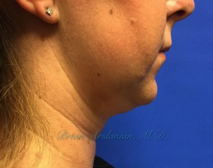 Kybella Before & After Patient #266