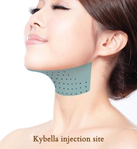 kybella injection site