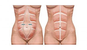 tummy tuck mommy makeover