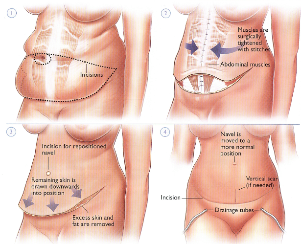 tummy tuck steps