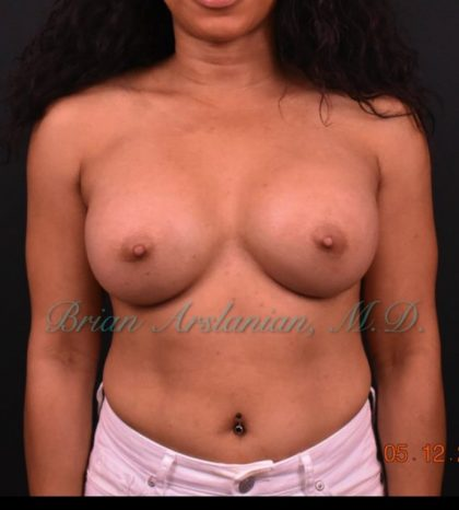 Breast Augmentation Before & After Patient #896