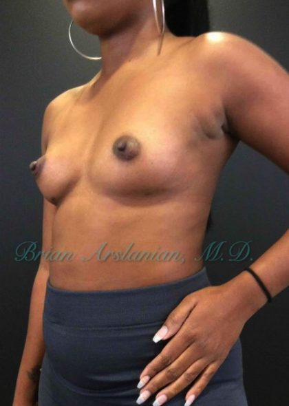 Breast Augmentation Before & After Patient #905