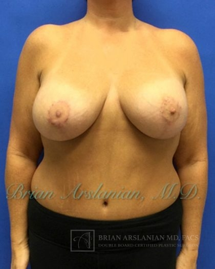 Breast Implants and Lift Before & After Patient #1080