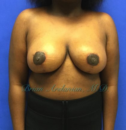 Breast Reduction Before & After Patient #1392