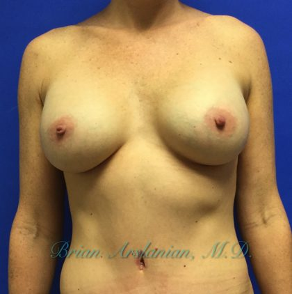 Breast Augmentation Before & After Patient #1359