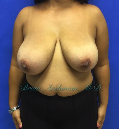 Breast Reduction Before & After Patient #1381