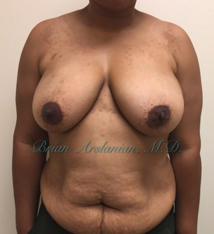 breast reconstruction Before & After Patient #1348