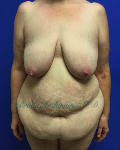 Breast Lift Before & After Patient #1368