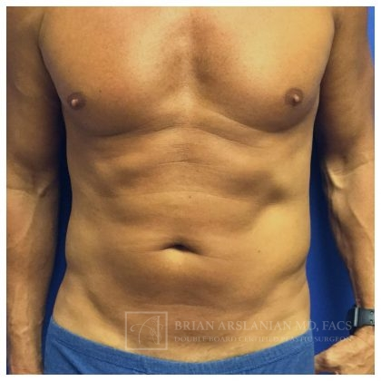 Abdominal Etching Before & After Patient #1504