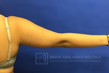 Liposuction Before & After Patient #1618