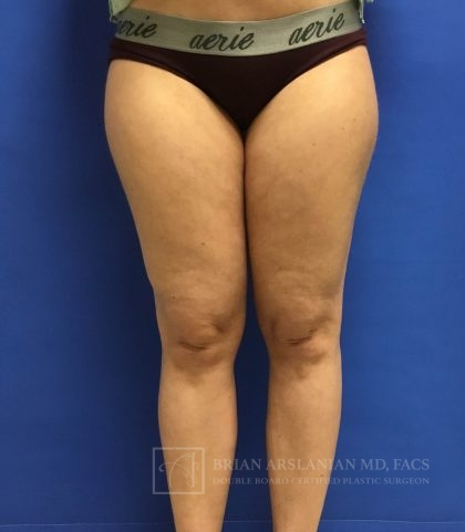 Liposuction Before & After Patient #1957