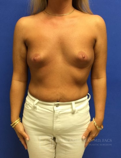 Breast Augmentation Before & After Patient #1928