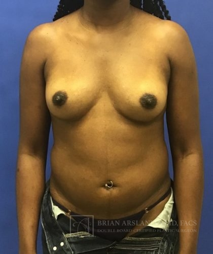Breast Augmentation with Fat Transfer Before & After Patient #2097