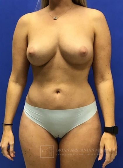 Fat Transfer Before & After Patient #2119