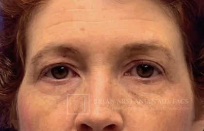 Blepharoplasty Before & After Patient #2139