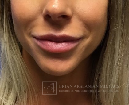 Fillers Before & After Patient #2426