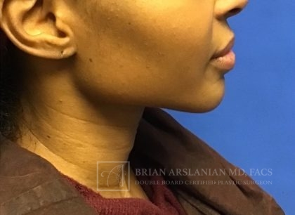 Fillers Before & After Patient #2442