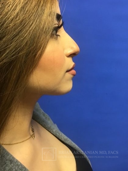 Fillers Before & After Patient #2454