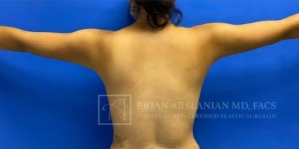 Liposuction Before & After Patient #2642