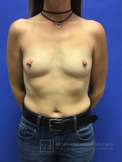 Breast Augmentation Before & After Patient #2585