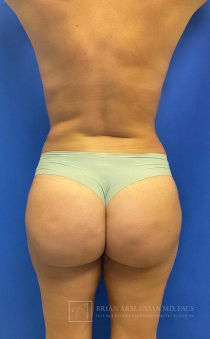 Brazilian Butt Lift Before & After Patient #2596