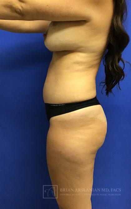 Brazilian Butt Lift Before & After Patient #2605