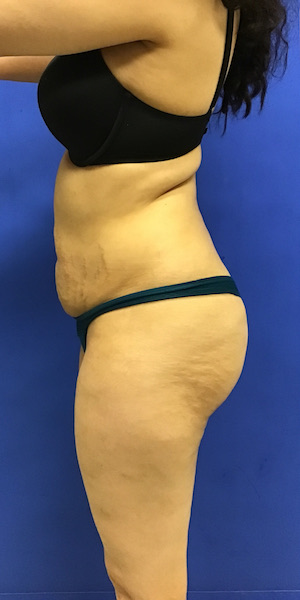 Fat Transfer Before & After Patient #2659