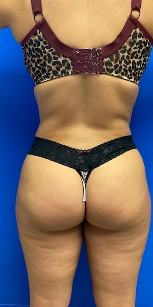 Liposuction Before & After Patient #2645