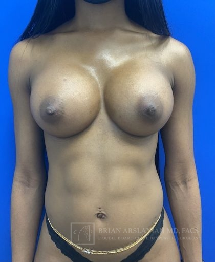 Breast Augmentation Before & After Patient #3012